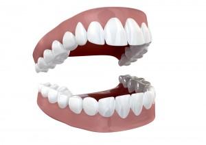separated set of teeth