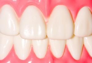 closeup model of teeth