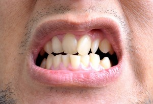 close up of crooked teeth