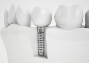 implant image