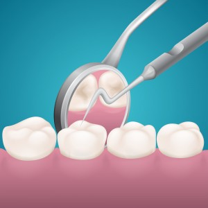 about cavities