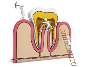 about root canals
