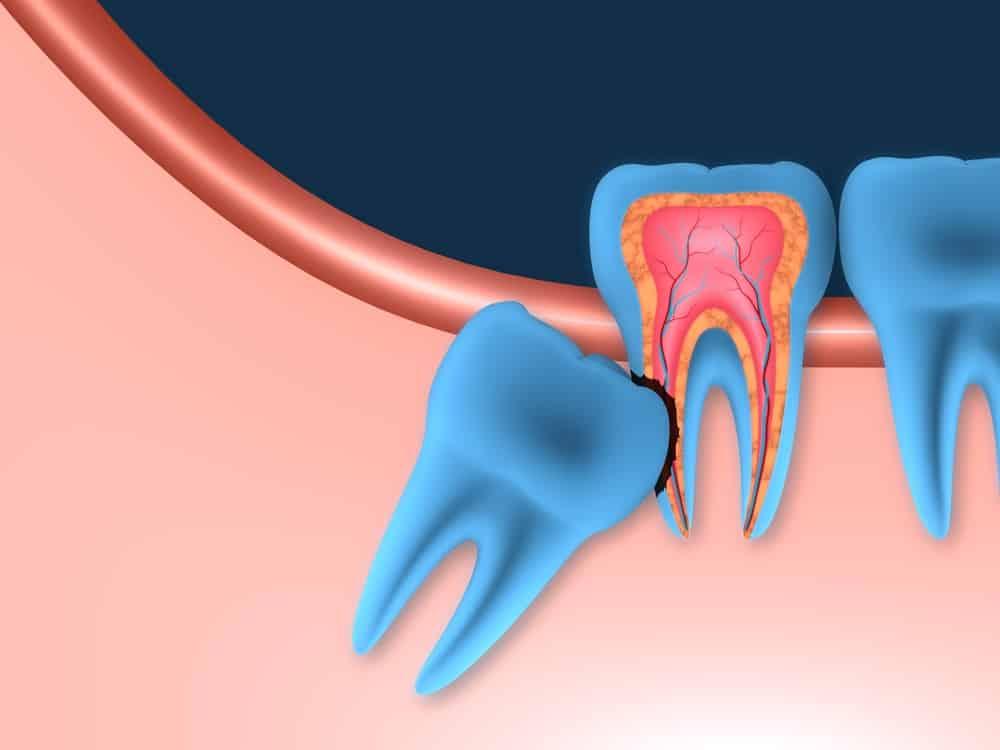 Удаление мудрого зуба цена
