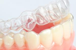 a look at invisalign clear braces