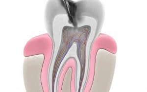When It's Time to Treat Your Root Canal | Lafayette, LA